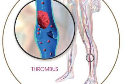 Trombus, vérrög