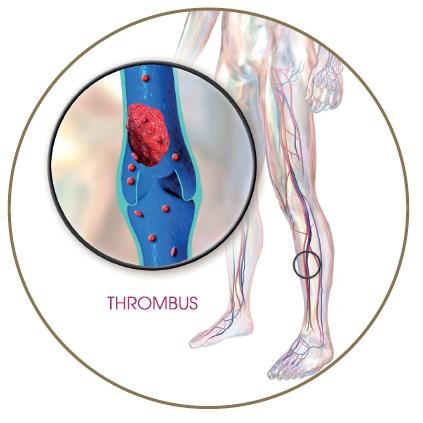 Trombózismegelőzés